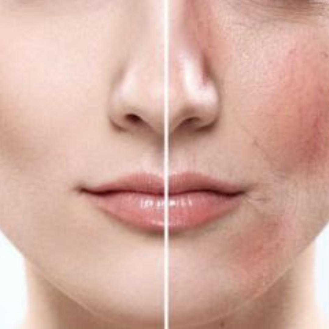 Redness Before-After - laser for facial veins Denver