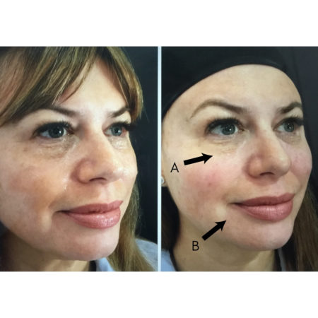juvederm filler before after