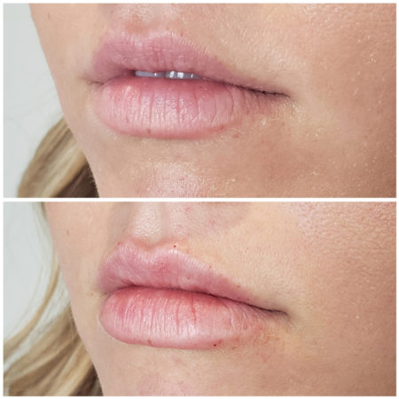 juvederm lip filler denver