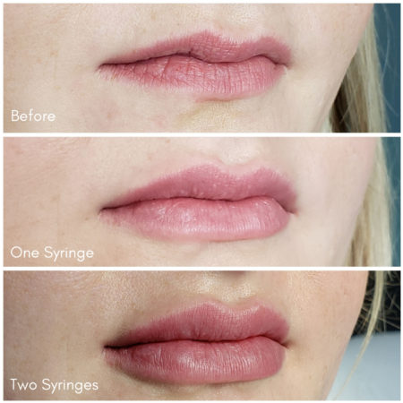 Dermal Filler Before and Afters in Denver, CO - The Luxe Room