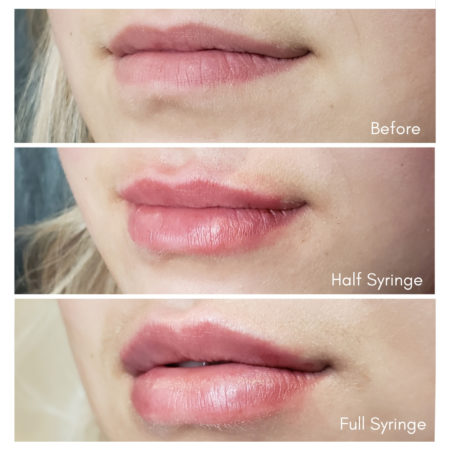 best lip filler juvederm