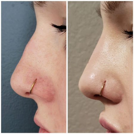 nose filler photos