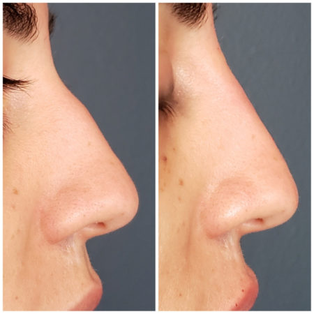 liquid rhinoplasty nose filler