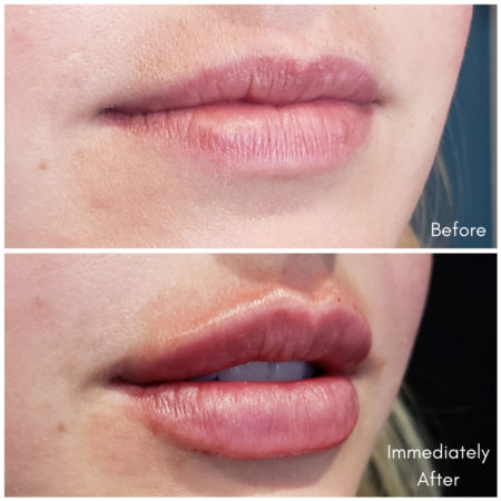 Juvederm Vollure lips