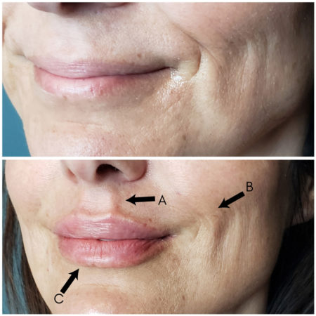 antiaging dermal filler