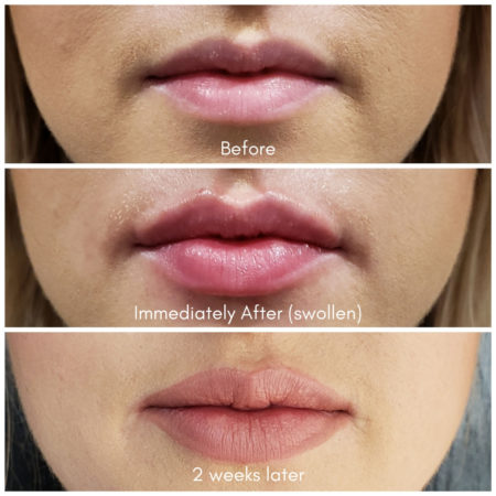 lip filler cherry creek