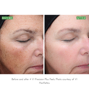 Before and After 4 VI Precision Peels Photo