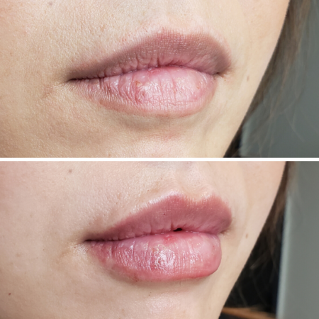 denver-restylane-lip-filler