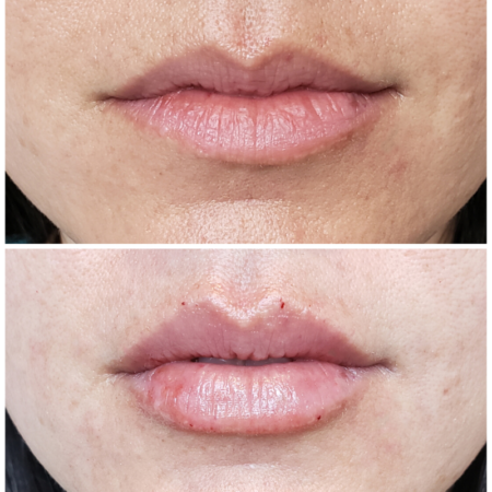 julie-horne-lip-filler